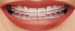 clear braces orange county ca