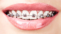 braces lake forest ca