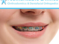 The Difference Between Self-litigating Braces and Traditional Metal Braces