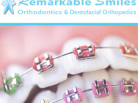 Why Traditional Metal Braces Are Still a Good Choice