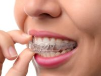 Why you might choose Invisalign over traditional braces