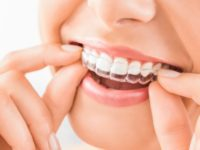 Questions to ask your Orthodontist before starting treatment